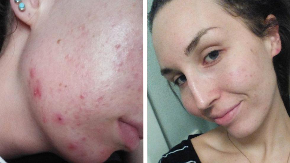 tetralysal mot acne